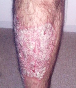 psoriasis-picture-1